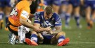 Bulldogs sweat on Hodkinson scans